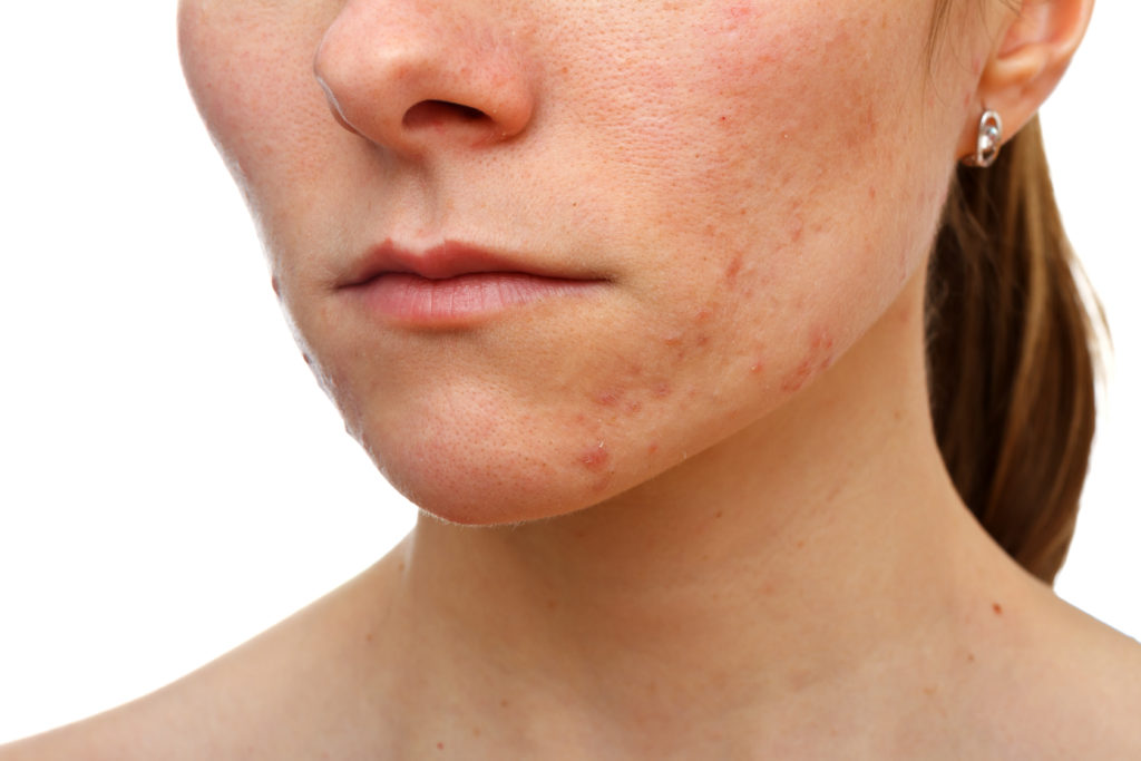 Is your diet making your skin look like this?